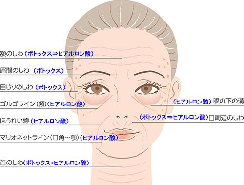 肩 ヒアルロン 酸 注射